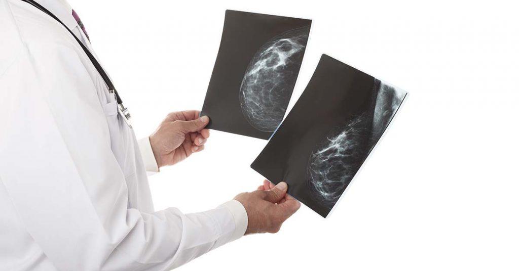 Autoexame, exame clínico e mamografia se complementam para detecção do câncer de mama